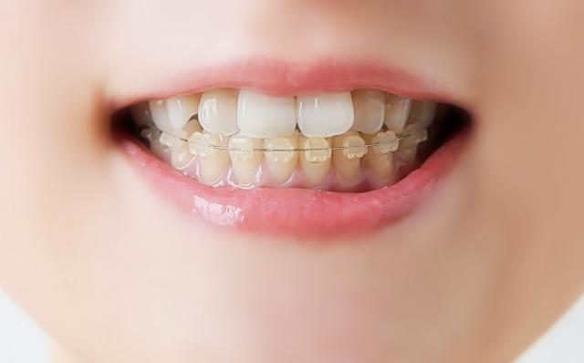 お口のトラブルを招きやすい歯並びの悪さについて