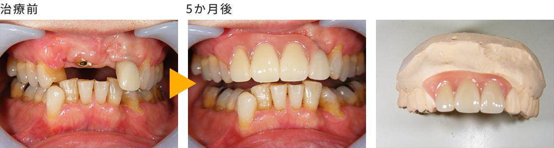 症例② 前歯を抜いたことにより、見た目の良い義歯を希望