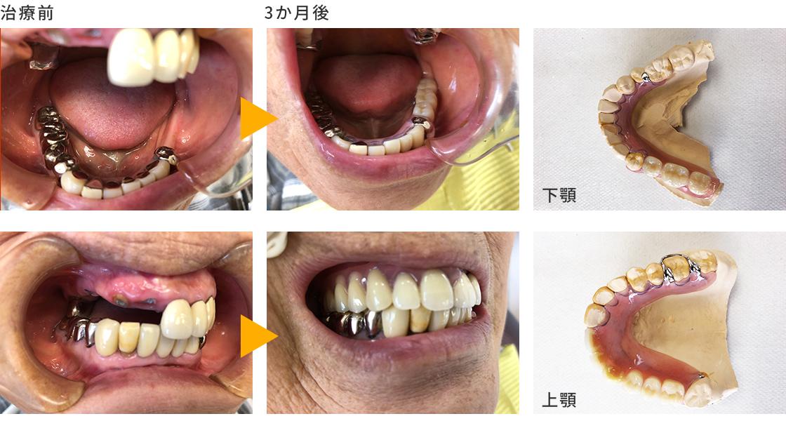 症例③ 上下の旧義歯の不具合、バネが見えない入れ歯を希望