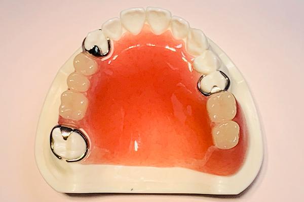 レジン(プラスチック)床義歯