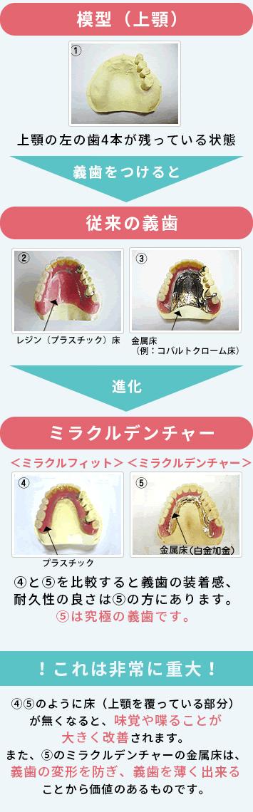 ミラクルデンチャーと従来の義歯との違い