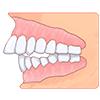 前歯が出ている(出っ歯/上顎前突)