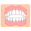 上の前歯で下の歯が見えない状態(過蓋咬合)
