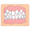 上下デコボコの歯並び(乱ぐい歯/叢生)