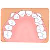 歯が生えるスペースが足りない