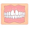 前歯の間にすき間ができている(すきっ歯/正中離開))
