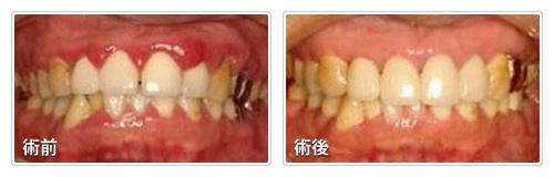 歯周内科治療によるお口の中の変化