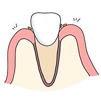 正常な歯肉