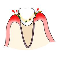 歯肉炎(歯ぐきの炎症)