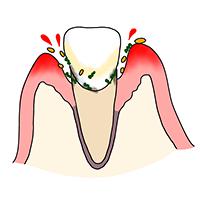 歯周炎初期(歯周組織の軽度な炎症)