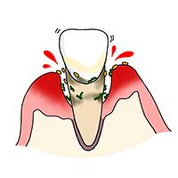 歯周炎後期(歯周組織の中等度~重度な炎症)